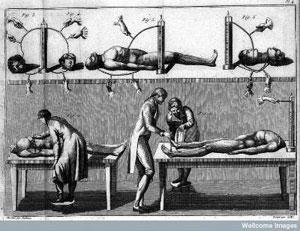 Galvani's Experiment