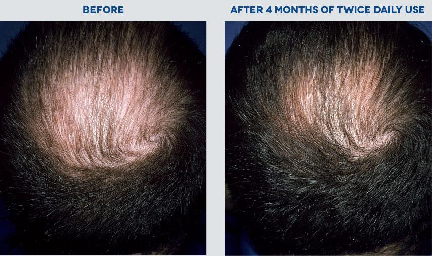 does propecia affect beard growth