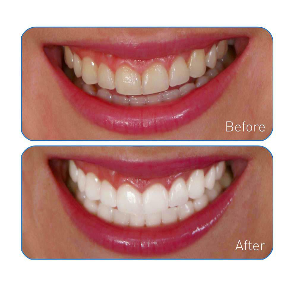 Amazon Com Ontel Miracle Teeth Whitener: Amazon.com : Go Smile Teeth Whitening System, 20 Count