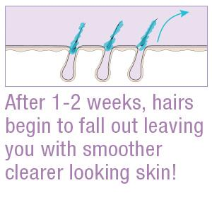 After 1-2 weeks, hairs begin to fall out leaving you with smoother clearer looking skin!