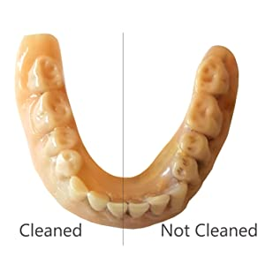 A 25-year old denture was cleaned with this system