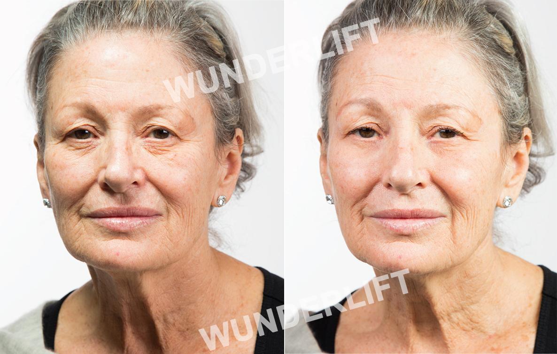 Amazon.com: WUNDERLIFT 60 Second Wrinkle Reducer: Beauty