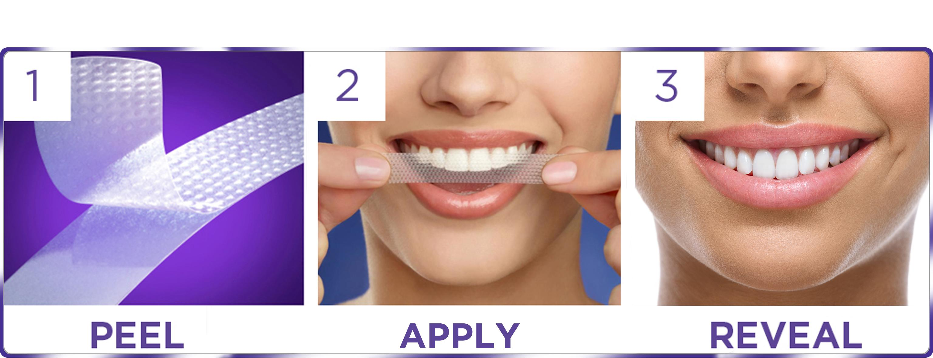 crest whitestrips Our obsession with achieving whiter teeth verges practically on the insane crest whitestrips have not only given us the results we've craved but have.