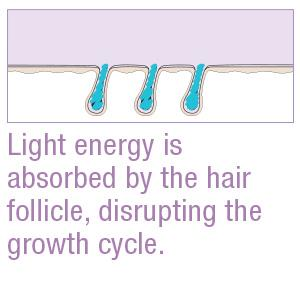 Light energy is absorbed by the hair follicle, disrupting the growth cycle.