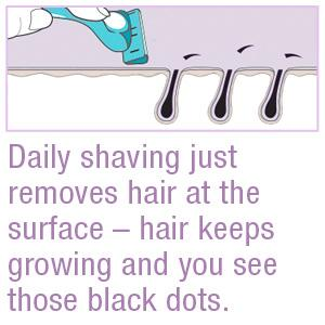 Daily shaving just removes hair at the surface – hair keeps growing and you see those black dots.