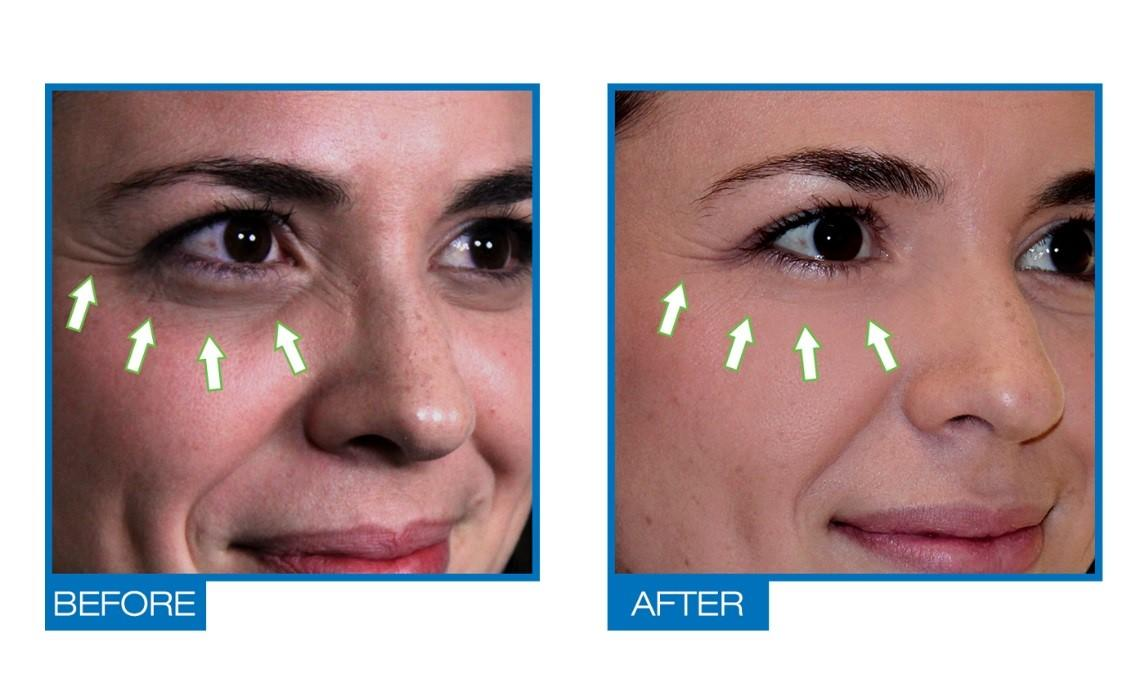 Natural Under Eye Puffiness Treatment