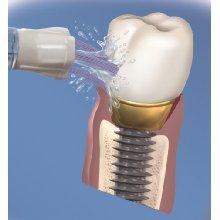 oral irrigator implant care