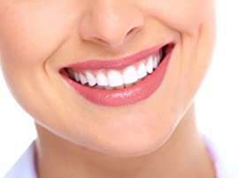 Dental Package and $1,000 Toward Invisalign