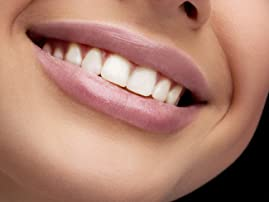 Two Laser Teeth-Whitening Treatments