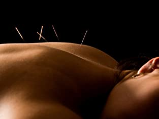 One or Three Acupuncture Sessions with Consultation