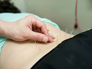 60-Minute Acupuncture Treatment with Consultation and More