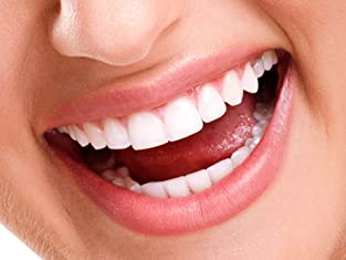In-Office Teeth Whitening