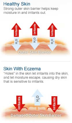 NEOSPORIN ECZEMA ESSENTIALS Daily Moisturizing Cream feature