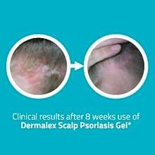 dermalex psoriasis cream free sample
