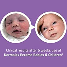 Eczema, baby, medicated, skincare, skin, dermalex, dry, itchy, flaky, relief, children,