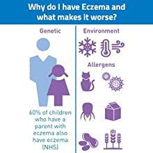 Eczema, skin, dry, itchy, skincare, medicated, atopic, Dermalex, relief, E45, Aveeno,