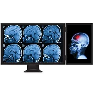 hub mst mini displayport, mini dp vers displayport, multi stream transport, splitter mst mini dp