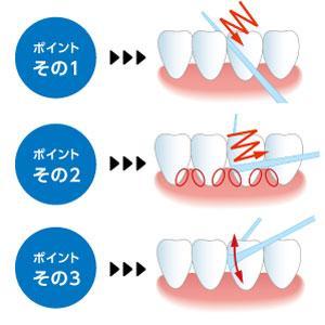 ポイント1 歯面に沿って、のこぎりをひくように内外に動かしながら、歯と歯が接触している部分を通過するまで少しずつ入れます。 ポイント2 歯と歯が接触している部分を通過したら、内外に横方向にこすりながら
