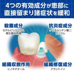 4つの有効成分が患部に直接留まり、諸症状を緩和