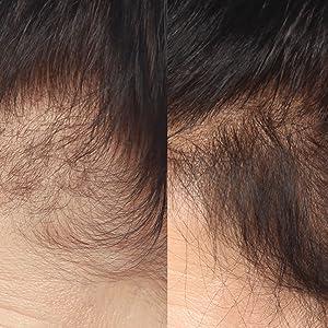 Resultado de imagen para hairmax before and after