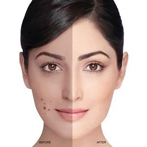 Fair & Lovely Anti Marks Treatment Face Cream, 18g: Amazon.in: Beauty