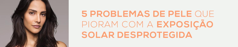 5 problemas de pele que pioram com a exposição solar desprotegida