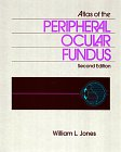 Atlas of the Peripheral Ocular Fundus, Jones, William L., 075069050X