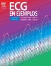 ECG en Ejemplos, Jenkins, Dean and Gerred, Stephen John, 8481749044