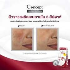 Concept. (คอนเซ็ปท์.) Cream Anti melasma reduce blemishes, helping freckles and dark spots to look fading naturally.Only 3 weeks, the blemish looks noticeably faded.24g.