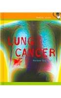 Download Lung Cancer (Health Alert) pdf