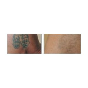 Unlimited Tattoo Removal Saves You Money! Try Neo Mag Light Tattoo Remover  Before Spending Thousands