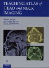 Teaching Atlas of Head and Neck Imaging, Lufkin, R.B. and Borges, A., 3131078812