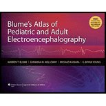 Blume's Atlas of Pediatric and Adult Electroencephalography by Blume MD CM FRCPC, Warren T., Holloway, Giannina M., Kaiba. (Lippincott Williams & Wilkins,2010) [Hardcover]