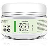 - Scar Removal Cream - Advanced Treatment for Face & Body, Old & New Scars from Cuts, Stretch Marks, C-Sections & Surgeries - With Natural Herbal Extracts Formula