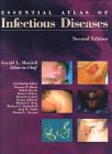 Essential Atlas of Infectious Diseases, Mandell, Gerald L., 1573401676