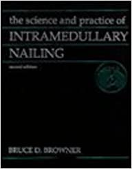 The Science and Practice of Intramedullary Nailing