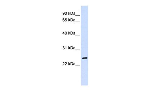 BAD antibody - C-terminal region (ARP30325_P050)