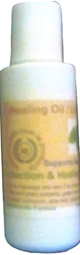 Hives Support Oil Formula Support for Irritaiton Itcfhing, Rash & Pain on Skin 2 1/2 Oz