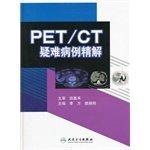 PETC fine solution difficult cases PDF