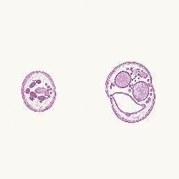 caracteristicas de ascaris lumbricoides