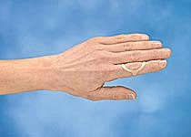 3 Point Products (3pp) Oval 8 Splints - Size 7 - Individual Splint