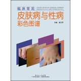 Common clinical Color Atlas of Dermatology and Venereology(Chinese Edition)