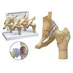 4-stage Arthritic Hip Model Set by GPI Anatomicals