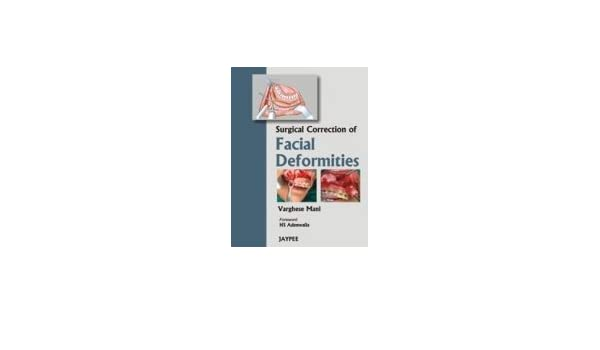 surgical correction of facial deformities mani varghese