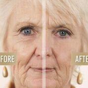 RX Cosmetics Flawless Eyes Anti-Wrinkle Beauty Gel, Two Bottles of 10ml (20 ml)