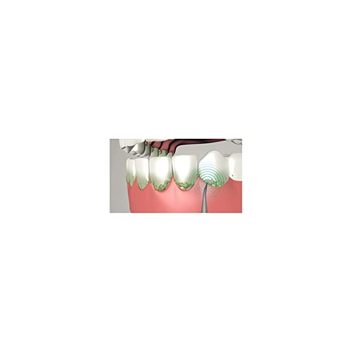 21oY%2Bse2GvS Ultrasonic es el cepillo de dientes con tecnología sónica recomendado para aquellos con problemas de recesión de las encías, ya que es más suave que los modelos de cabeza giratoria. A diferencia de los cepillos de dientes eléctricos tradicionales, los cepillos de dientes sónicos realizan movimientos oscilantes que permiten cepillarse verticalmente según las recomendaciones de los dentistas. El ultrasonido se caracteriza por las cerdas de vibración rápida que limpian los dientes en lugar de un movimiento circular, lo que hace que sea más suave para las encías, ya que elimina la placa dental y los restos de comida.