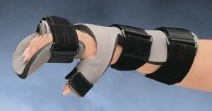 Progress Dorsal Anti-Spasticity Splints - Medium Left