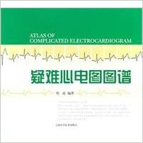 Book difficult ECG patterns (Chinese Edition)