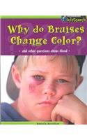 Why Do Bruises Change Color?: And Other Questions about Blood (Body Matters) (Bruise Colors)