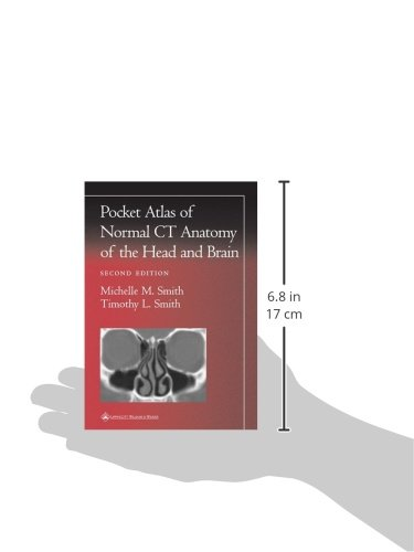 Pocket Atlas of Normal CT Anatomy of the Head and Brain Radiology ...